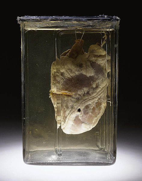 File:Gunshot heart.jpg