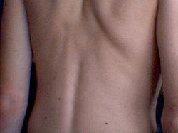 en ryg
