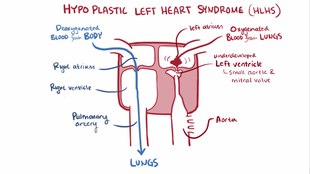 Datei:Hypoplastic left heart syndrome video.webm