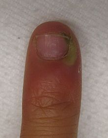 cellulitis of the finger #10