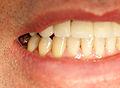 Krone unverblendet Zahn 46 IMG 6712.jpg