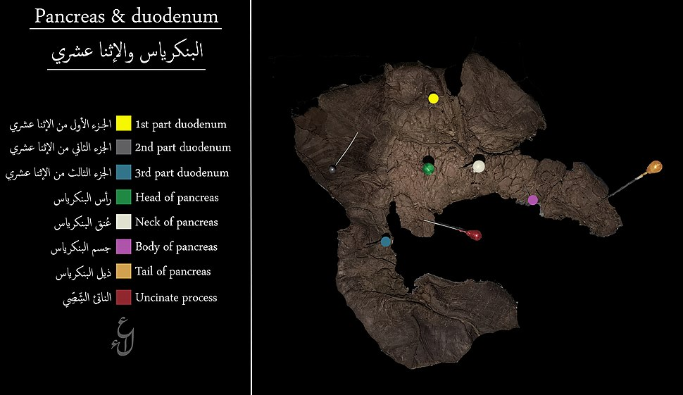 Labeled Pancreas and duodenum