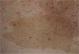 Cafe Au Lait Spots Blue Nevi Red Dermographism Hypotonus