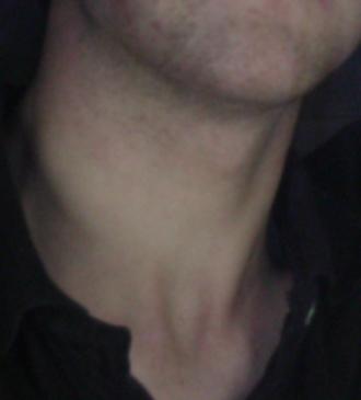 Neck - Human neck