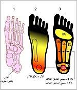 مناطق الألم الأكثر شيوعًا في التهاب اللفافة الأخمصية