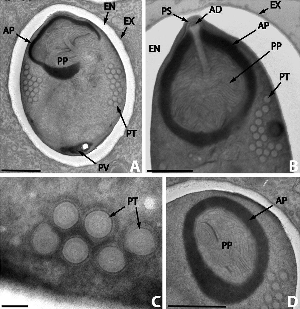 Parasite140019-fig4 Nosema podocotyloidis - Hyperparasitic Microsporidia
