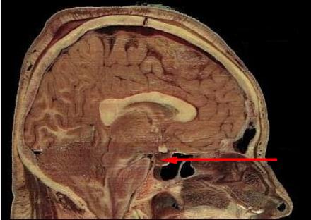 Hypophyse - Wikiwand
