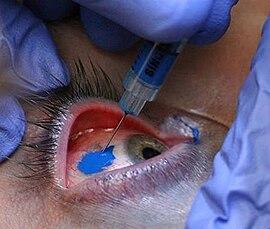Tatuaje Ocular Wikipedia La Enciclopedia Libre