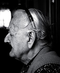 A human face showing signs of ageing