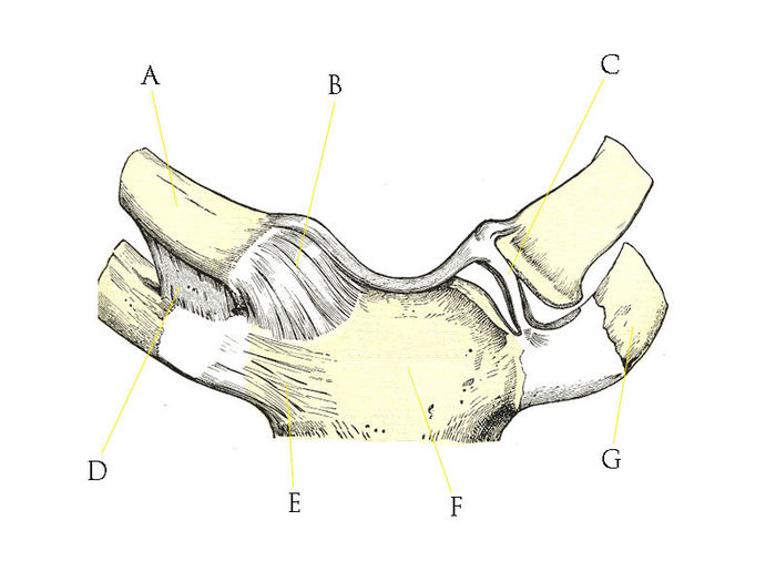 Sternoclavicular joint upper limb quiz2.jpg