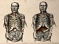 The body of a man with the trunk dissected Wellcome V0008606.jpg