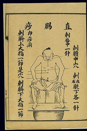 Treatment of acute pathologies, bowel disease, lithograph Wellcome L0037895.jpg