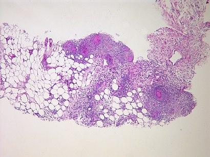 Tuberculous peritonitis (6544825621).jpg