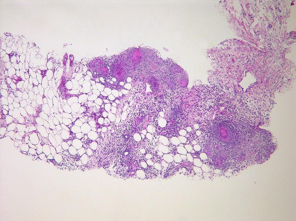 Tuberculous peritonitis (6544825621)