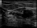 Ultrasound Scan ND 134324 1349490 cr.png