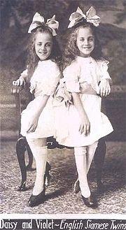 結合双生児 - Wikipedia