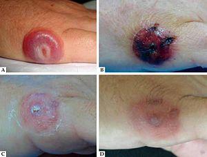Paravaccinia virus - Human skin infected with paravaccinia virus.