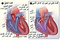 Atrial septal defect-ar.jpg