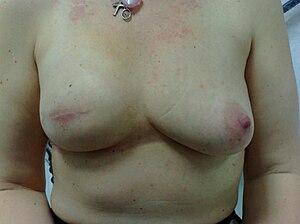 English: Skin sparing mastectomy and implant r...