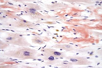Congo red - Micrograph demonstrating amyloid deposition (red-orange) with Congo red staining in cardiac amyloidosis.