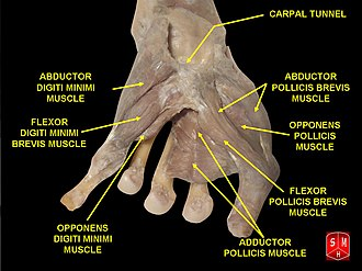 Opponens pollicis muscle - Image: Dissection of hand