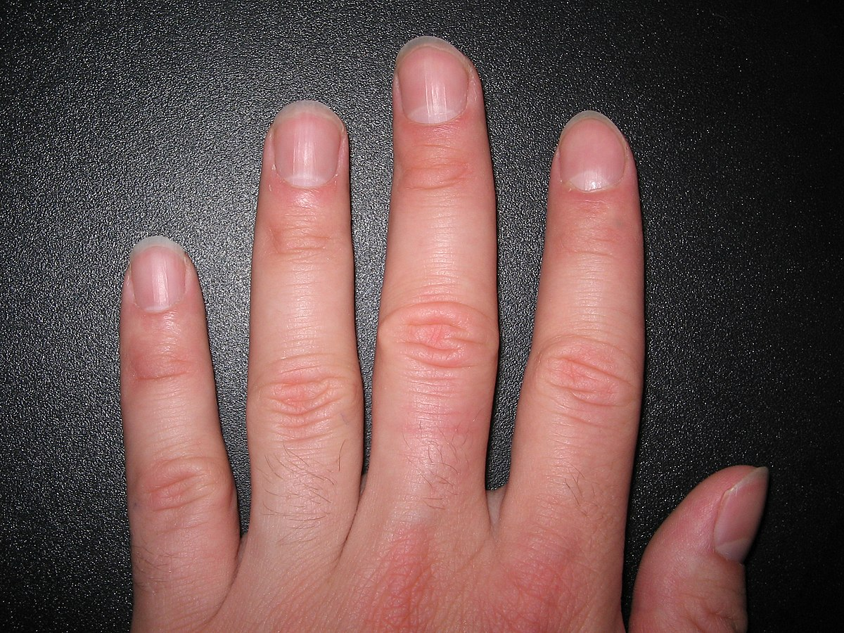 Nail (anatomy) - Simple English Wikipedia, the free encyclopedia