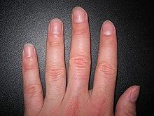 Nagel Anatomie Wikipedia