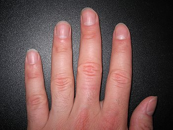 English: Fingernails, about 2mm long Deutsch: ...