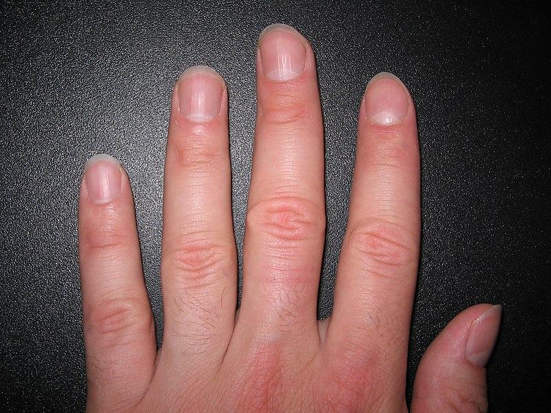 File:Fingernails2.jpg