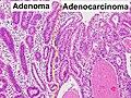Histopathology of gastric adenoma and adenocarcinoma.jpg
