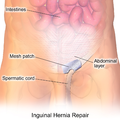 Inguinal Hernia Repair.png