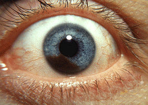 English: Photograph of an iris melanoma