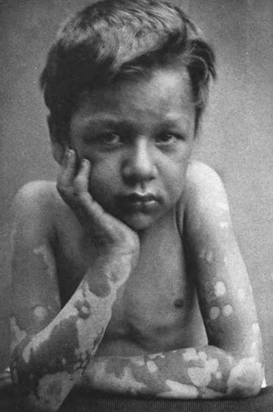 File:Lepra maculosa 2.jpg