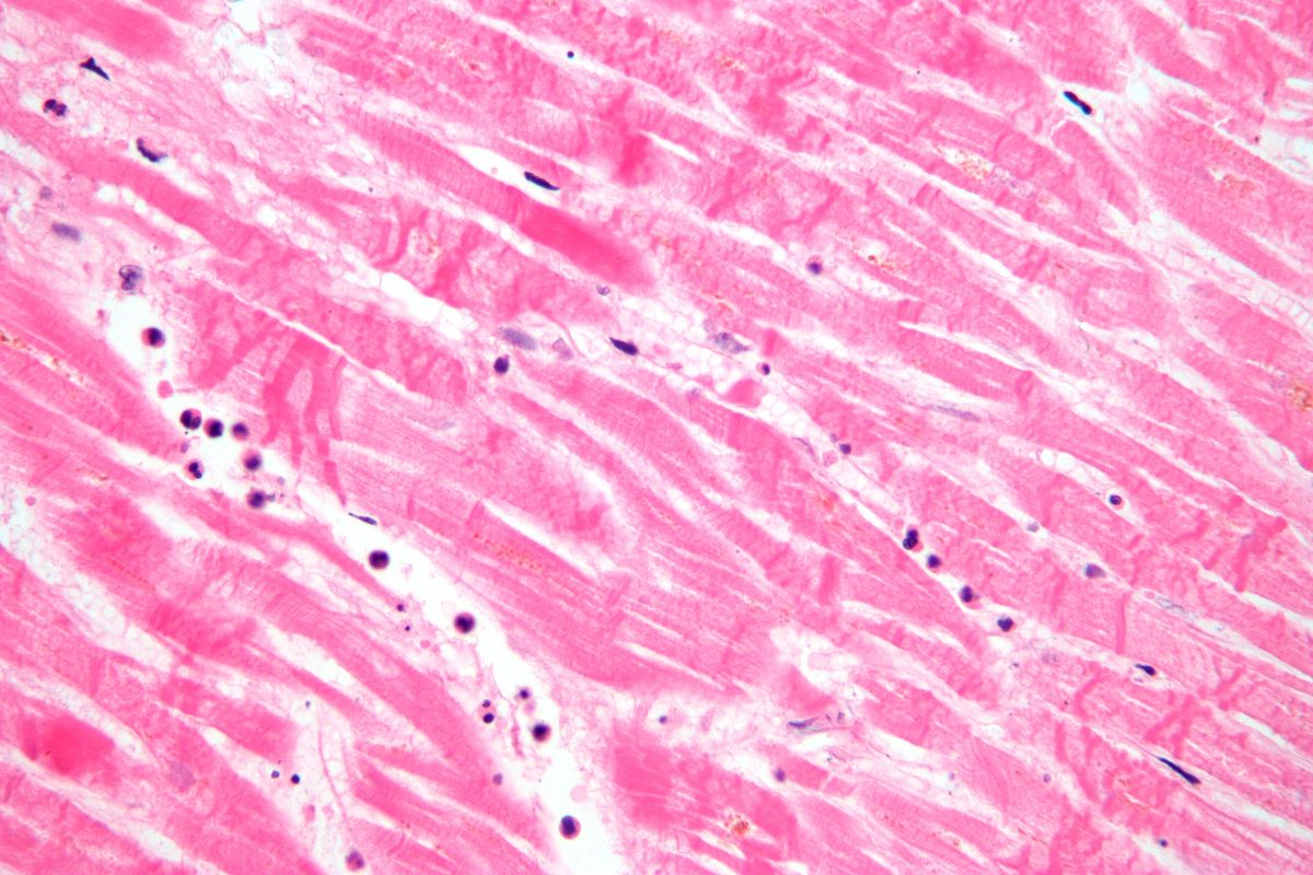 Histopathology Wikipedia