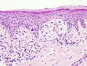 Malignant melanoma in skin biopsy with H&E sta...