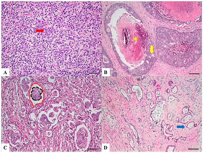 Histopathology Of Colorectal Adenocarcinoma Wikipedia