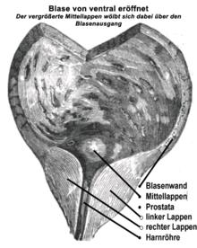 Schnittbild der Prostata