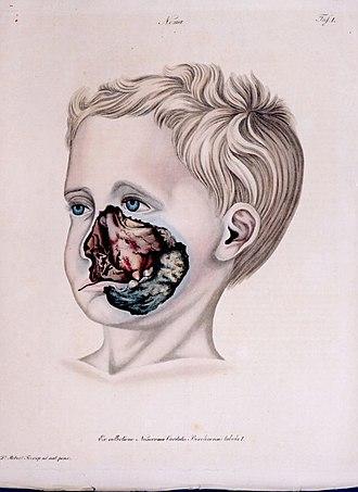 https://upload.wikimedia.org/wikipedia/commons/thumb/6/6b/Noma.jpg/330px-Noma.jpg
