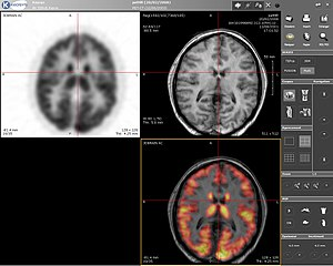 Positron emission tomography–magnetic resonance imaging - Computer screenshot showing a PET image (upper left), MRI image (upper right) and the combined PET-MRI image where PET data is overlaid over the MRI data (lower right)