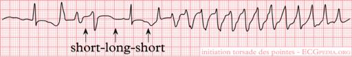 Rhythm torsade (CardioNetworks ECGpedia)