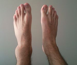 English: Sprained Ankle