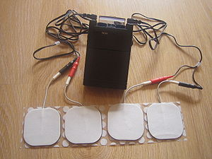 Transcutaneous electrical nerve stimulation - Image: Tens