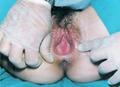 Agenesia de vagina2.png