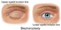 Blausen 0085 Blepharoplasty-EyeLift.png