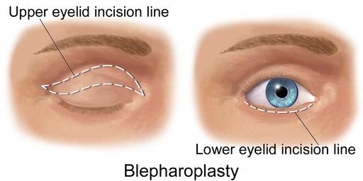 Blausen 0085 / Schnittlinien einer Augenlid-Operation