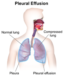 Pleural effusion - Wikipedia