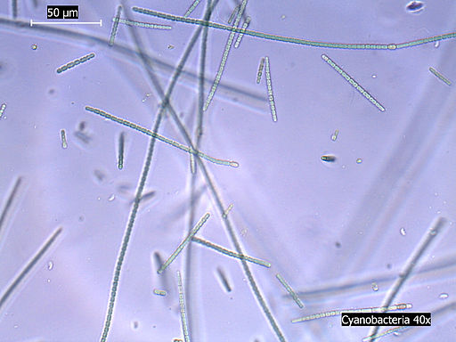 Cyanobacteria Under Light Microscope 40x Mag