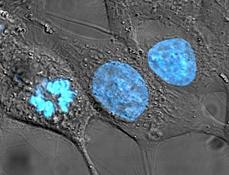 Cell nucleus - HeLa cells stained for nuclear DNA with the blue fluorescent Hoechst dye. The central and rightmost cell are in interphase, thus their entire nuclei are labeled. On the left, a cell is going through mitosis and its DNA has condensed.