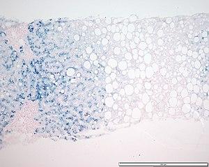 Hemokromatoz karaciğer demir prusya mavisi.jpg