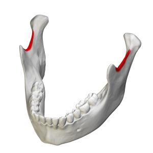 Mandibular notch - Position of mandibular notch in mandible, shown in red.